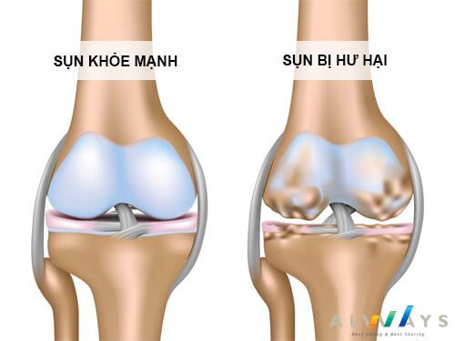 Hình ảnh sụn khớp bình thường (trái) và tổn thương (phải)